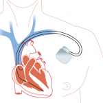 drawing of human heart in red connected to a defibrillator implant in graw